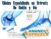 Especialistas en Artrosis de Pie y Rodilla Bogota